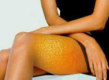 'апельсиновой коркой'